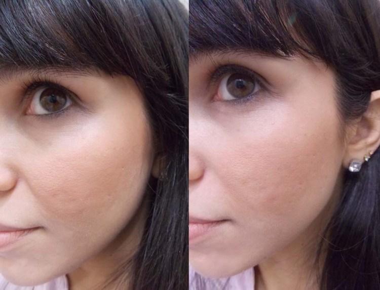 Teste de pigmentação: Antes e Depois