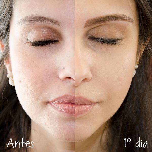 antes-depois-micropigmentação-fio-a-fio-3d